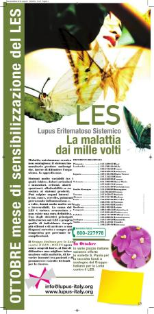 Una violetta per la lotta contro il LES - 22 ottobre 2017 - Matera